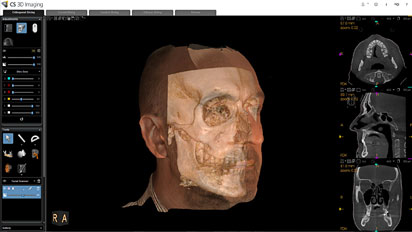 CS Face Scan